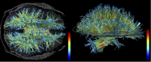 MRI scan of white matter structure in the human brain    Copyright: 3D Slicer
